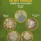 Images of germs on hands
