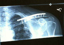 X-ray of Swenson's reconstructed clavicle