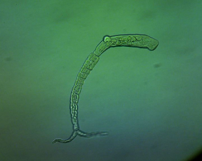 A microscope image of a schistosome, a parasitic worm
